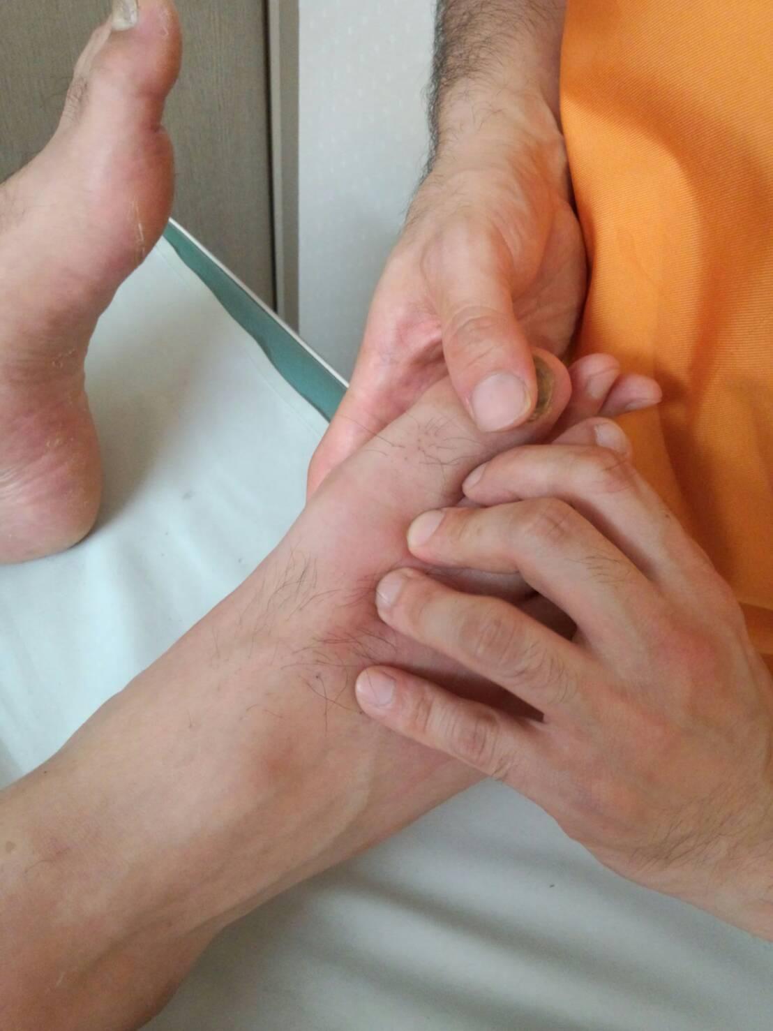 モッチさんの足